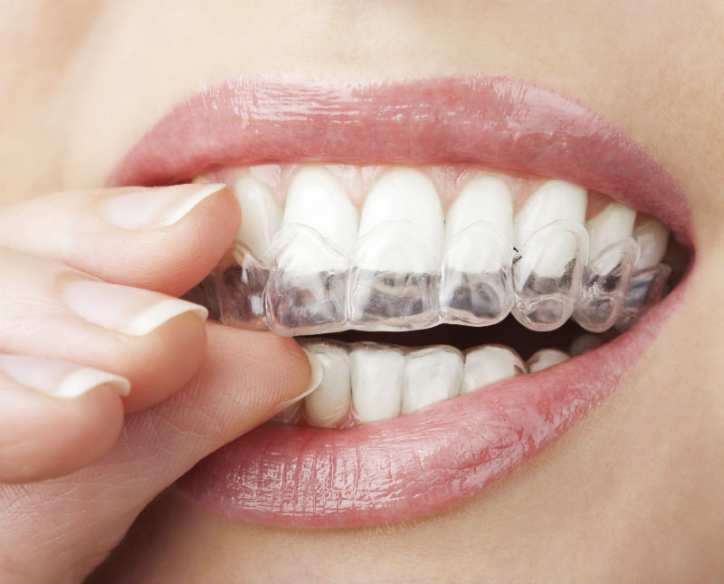 Teeth grinding can be prevented with an oral appliance from Catherine Irasusta, DMD.