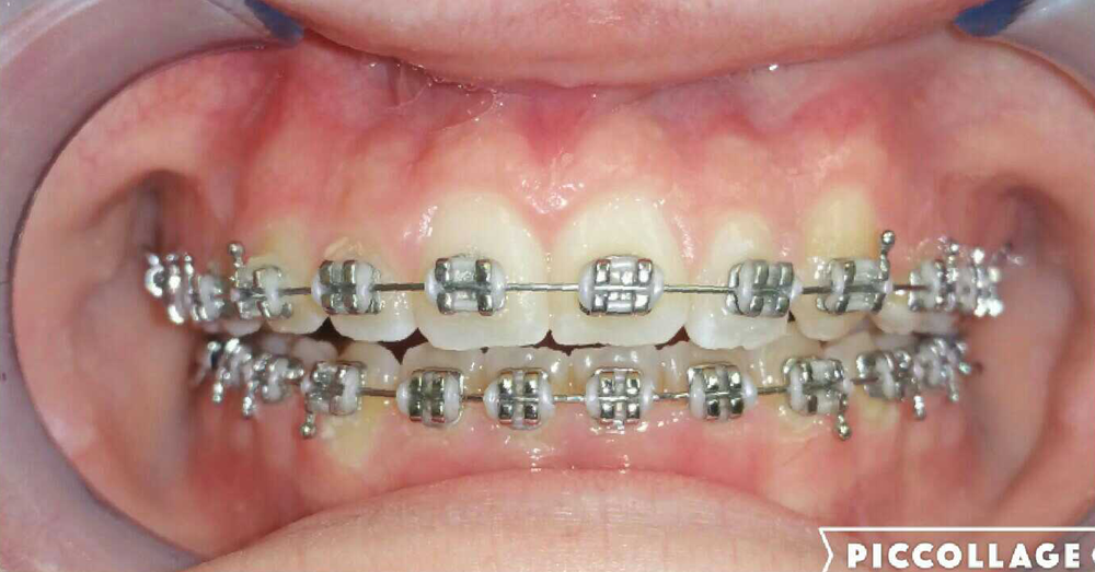 Braces are the common fix for misaligned teeth.