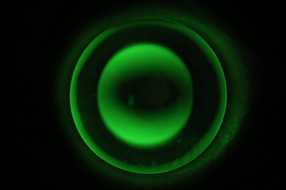 An orthokeratology lens to correct astigmatism, viewed under green light.