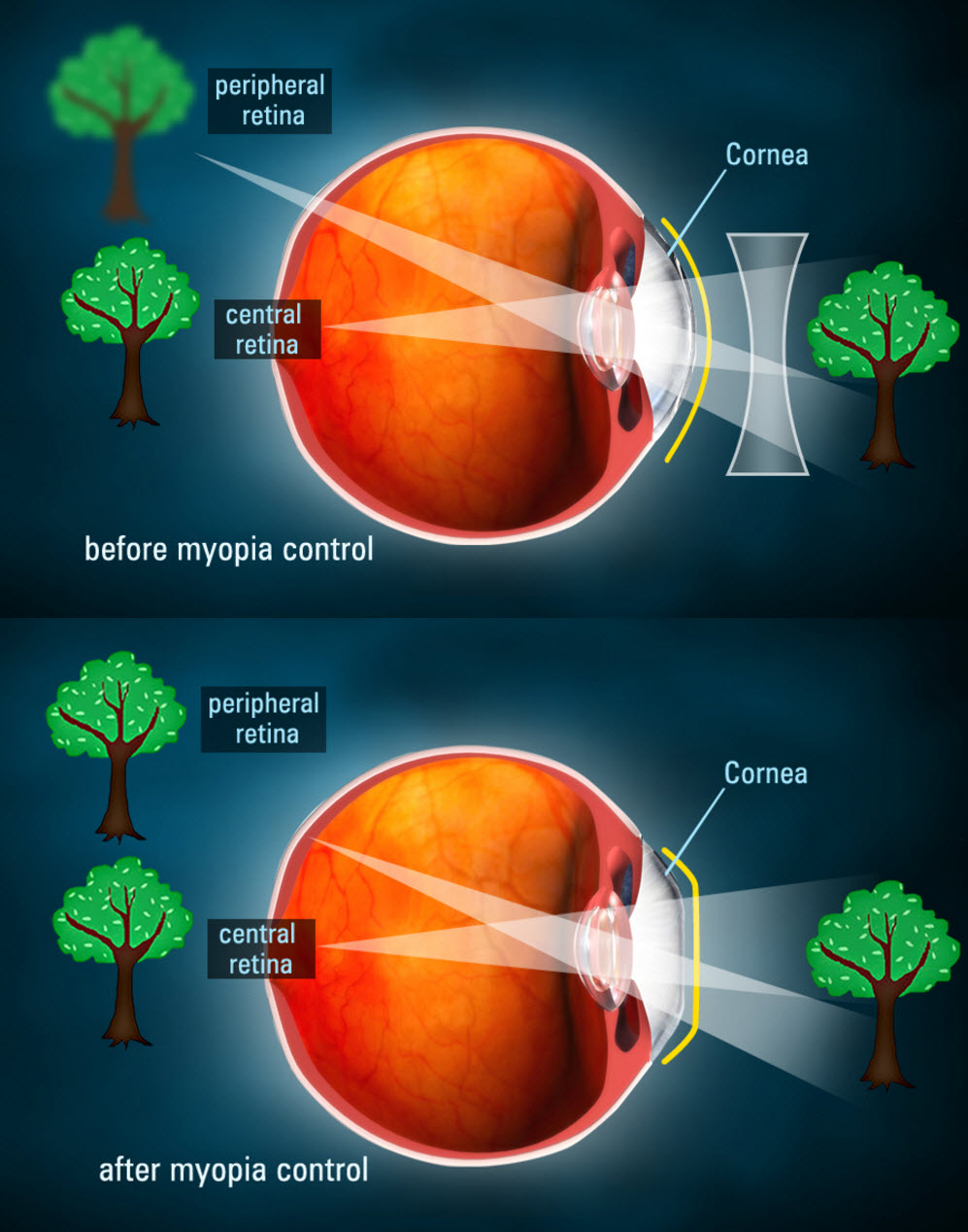 A graphic showing how Ortho-K lenses (bottom) change the path of light entering the eye, which decrease myopia progression. Courtesy of  Rose Optometrists