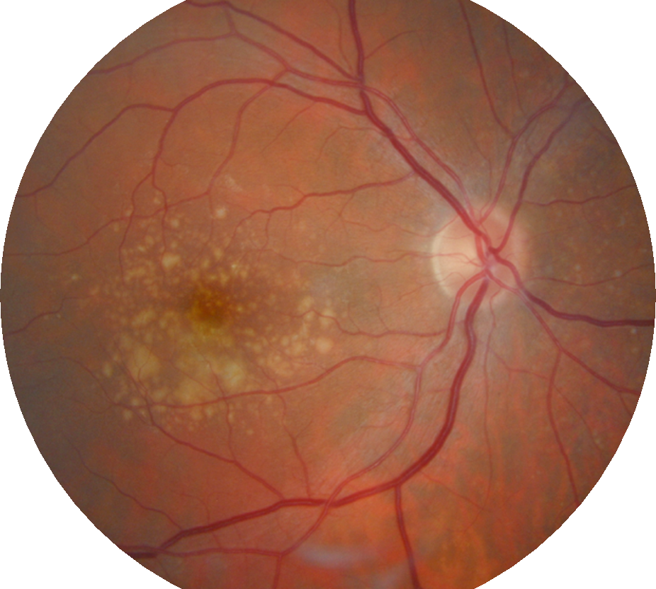 An eye with macular degeneration. Note the yellow debris or 'drusen' in the centre of the retina.