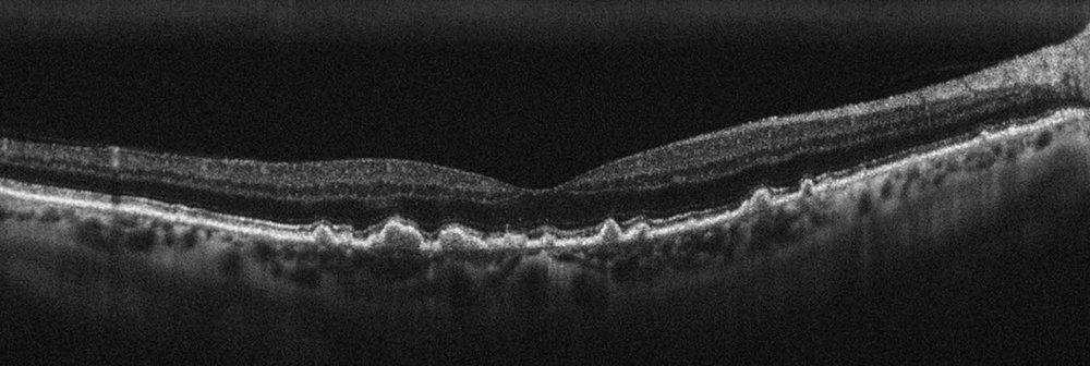 An OCT scan of a patient with macular degeneration showing the debris or 'drusen' building up under the retina.
