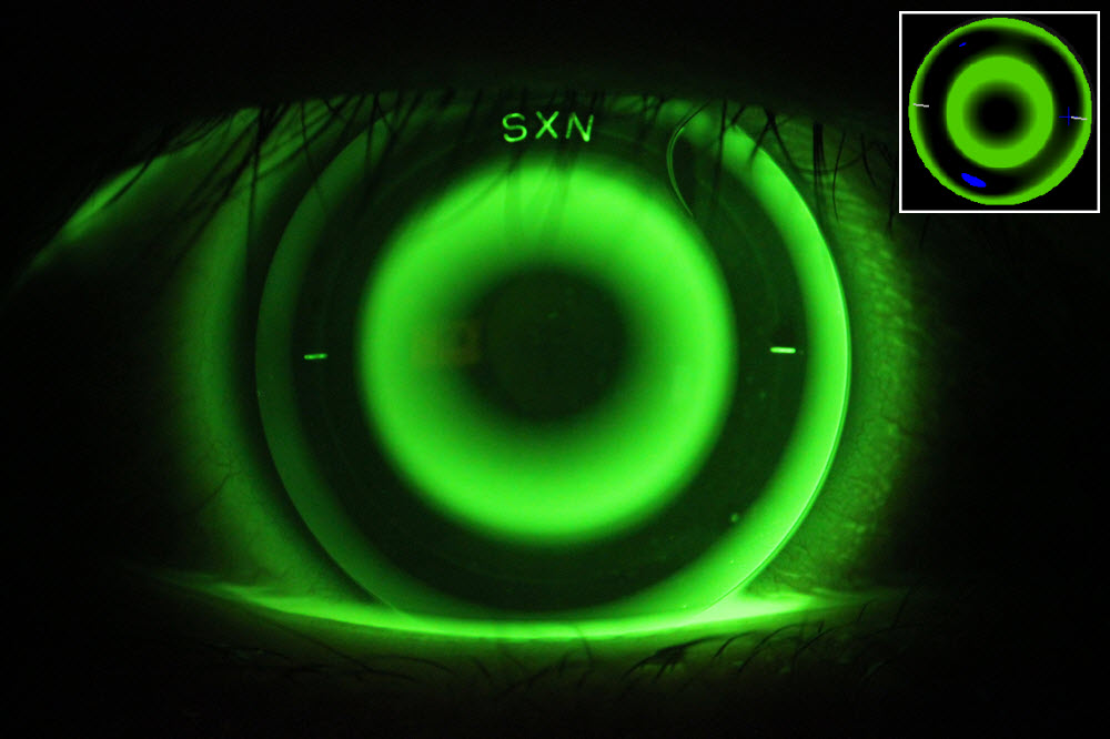 Image of a Myopic Orthokeratology Lens