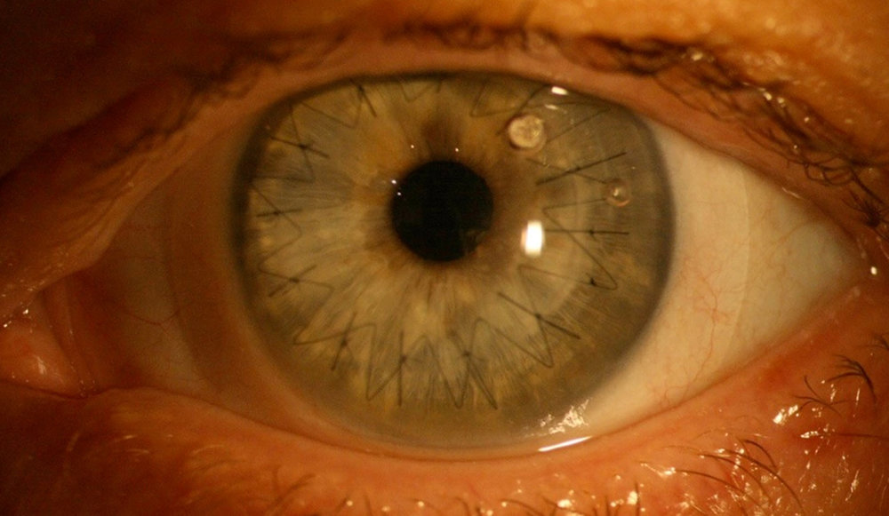 corneal graft with scleral lens.jpg