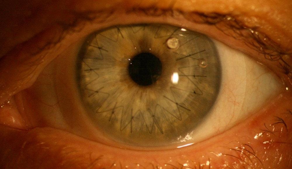 corneal graft with scleral lens.jpg