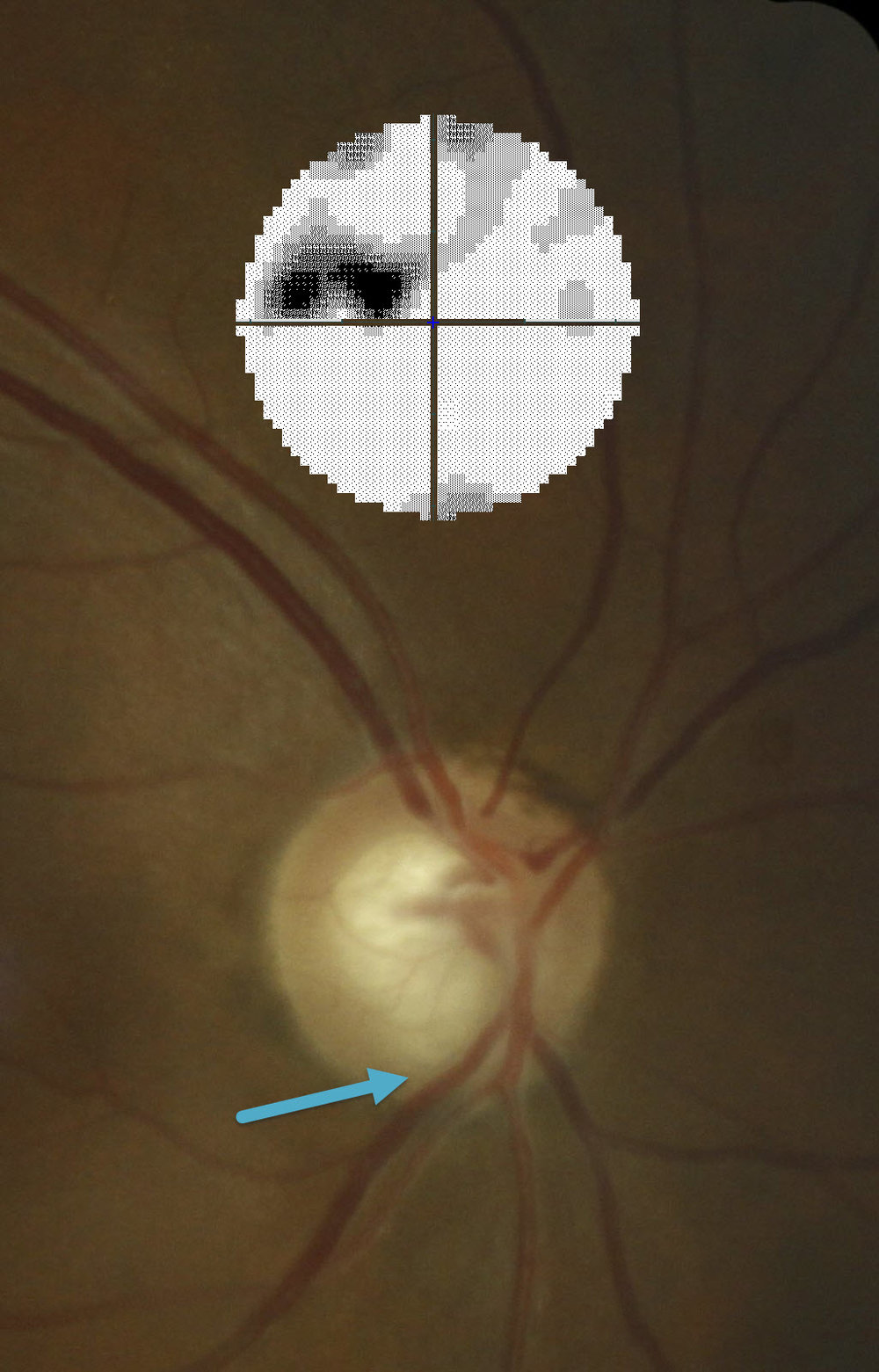 Image of a Optic Nerve with Glaucoma