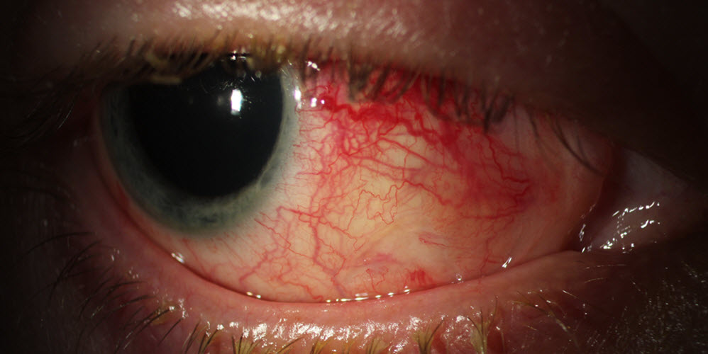 Eye with Inflammation