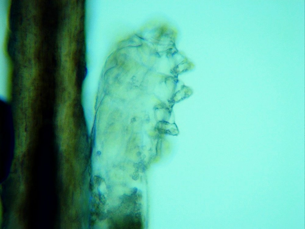 A demodex mite from on of our patient's eyelashes seen under the microscope.
