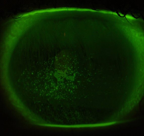 The green speckled area shows a patch of dryness on the surface of an eye with MGD