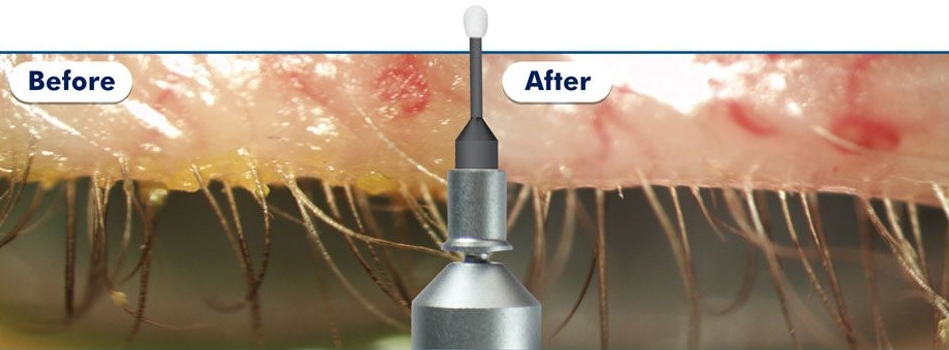 The effect of using the BlephEx treatment available at Bay Eye Care to clean the lid margin of debris.