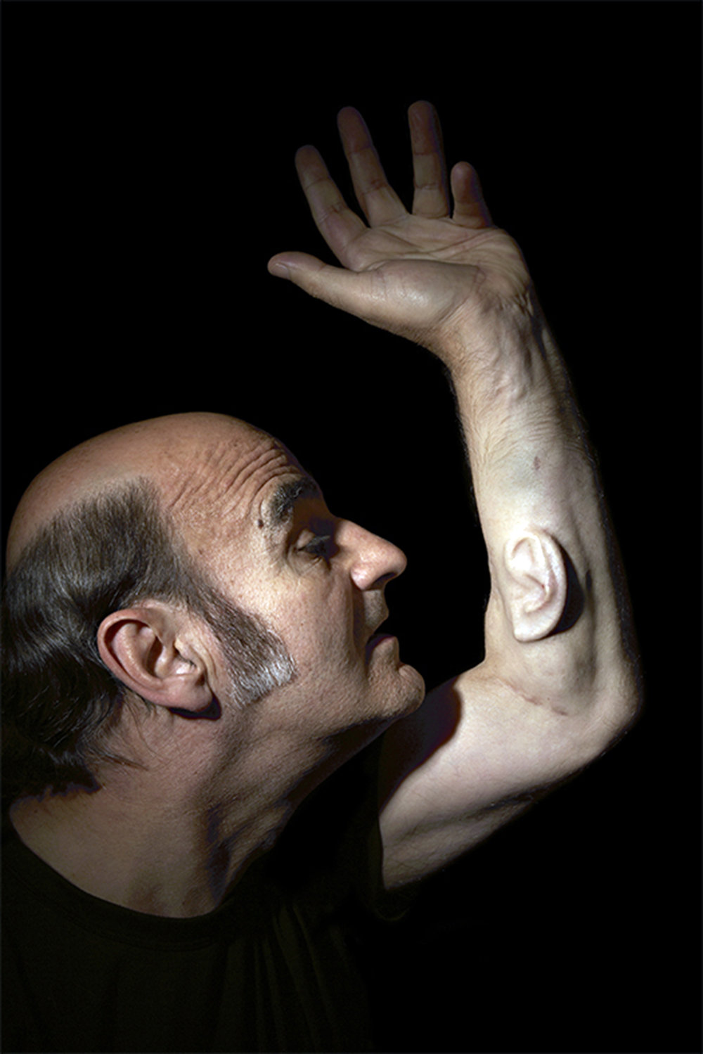 Stelarc with a surgically implanted ear in his arm.