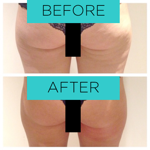 Safely removes cellulite in areas of your body giving you a beautiful toned look.