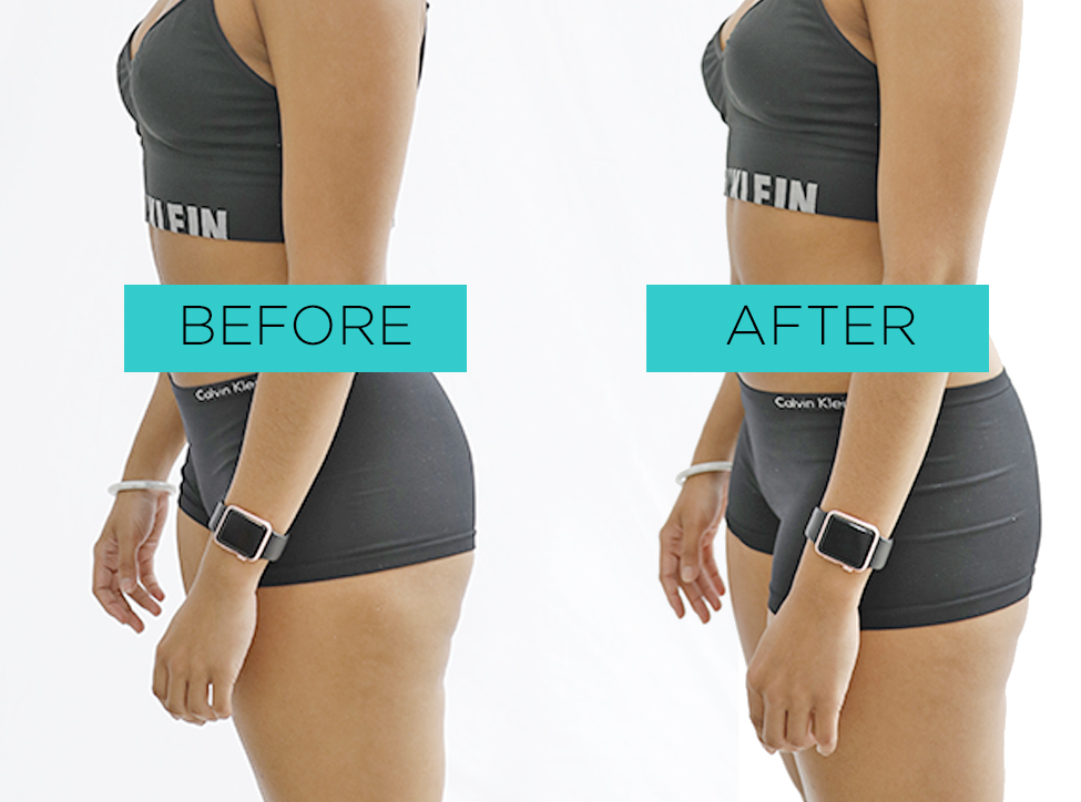 Take advantage of the CRYOSKIN 2.0 TONING to gain the appearance of strong muscle tone in the thighs.