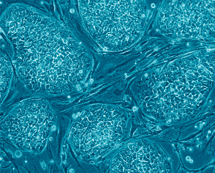 Human embryonic stem cells. Credit: Nissim Benvenisty. Click for source.