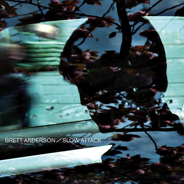LA- Brett Anderson 2.jpg