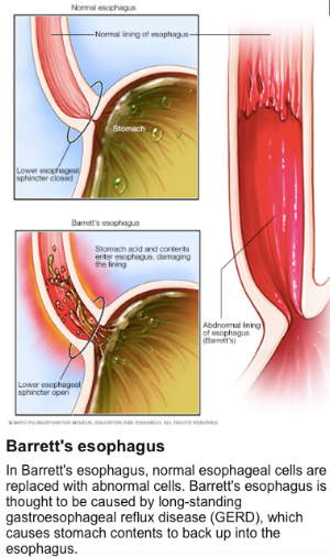 From: http://www.mayoclinic.org/diseases-conditions/barretts-esophagus/home/ovc-20322957