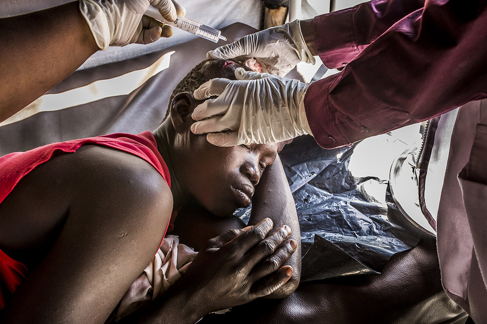Outpatient clinic in the MSF health center in Bidibidi. A girl tried to intervene during a fight between two people. She had a cut in her head.
