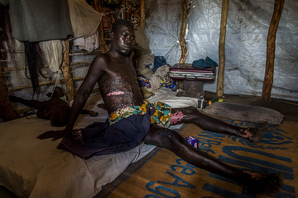"James JOSEPH, a married 33 years old mechanic, South Sudanese refugee, living in Bidibidi camp, zone #2, with his 1 year and 4 monts old boy (Gabriel Joseph sleeping behind him on the bed). James has been burnt by petrol on fire while he was fixing the car of a refugee, along the road, few tenths meters from his tent. The tank of the car had been empty in a bassin hold by the client. The wire of the battery that has been removed made contact, sparking. The petrol catch fire. The client afraid release the bassin and drop the burning contain accidentally on James. It was on 13th January 2016.  He was referred to Arua Hospital, a big city 2 hours drive away. He spent 1 months and 5 days there. MSF NGO took him, paying for medication. The owner of the car assists him all along ... Now he suffers, can't work. ""Even the sun through my clothes burns me.""  During the day, he shelters in the shade of his makeshift house, waiting for darkness to go out."