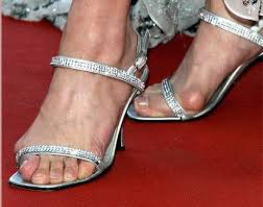 Most bunions are caused by poor fitting shoes. -