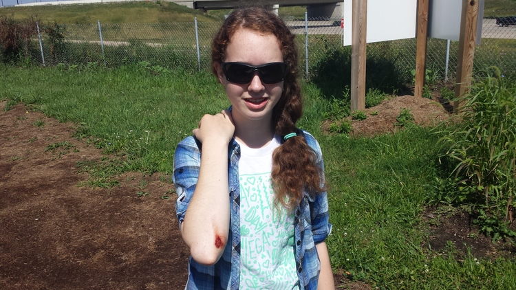 During Climate Camp's bicycle tour of Indianapolis, Iris had a mishap on her bike. Like a warrior, she got right up and kept on biking.
