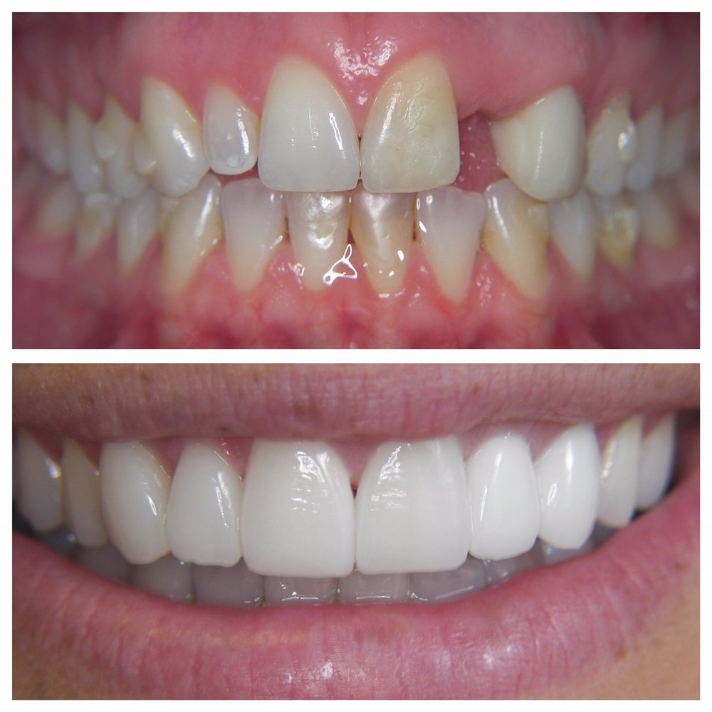 Reconstruction of Missing Teeth - Aligners, Feldspathic Laminates, Implants & Crowns