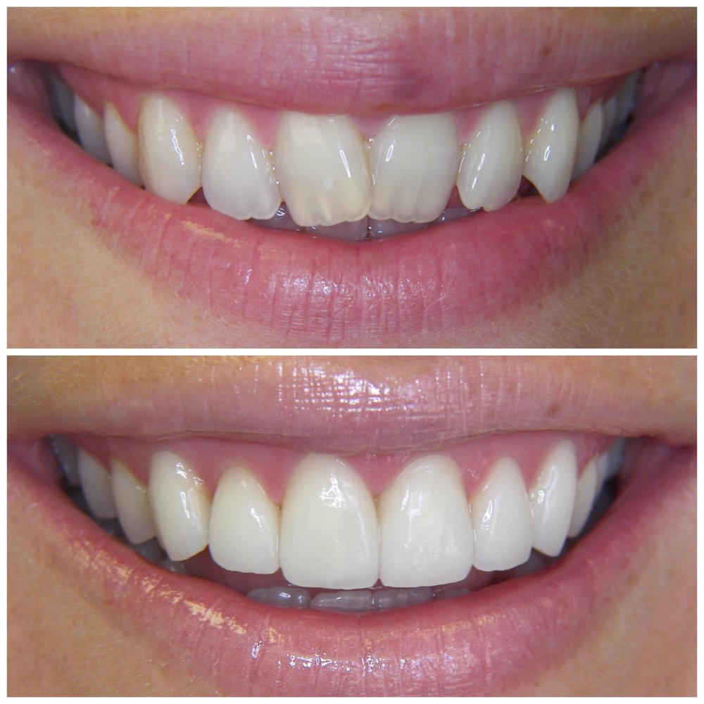Congenitally Malformed Enamel - Whitening, Feldspathic Ceramic Veneers