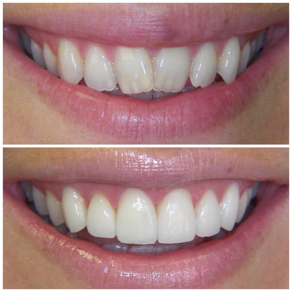 Cosmetic Restoration of Malformed & Crowded Teeth - Whitening, Feldspathic Ceramic Veneers