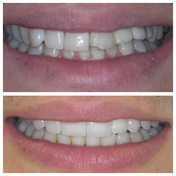 Full Mouth Rehabilitation Post Sports Injury - Aligners, Feldspathic Laminates, Implants & Crowns