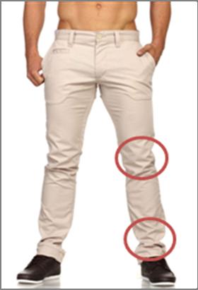 On le voit très bien ici : 2 problèmes majeurs au niveau des genoux et des chevilles