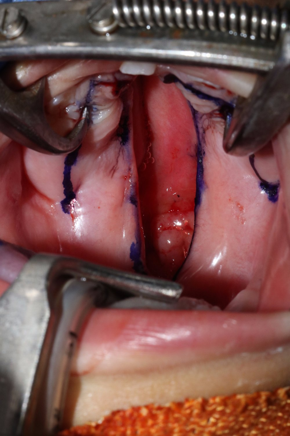 Primary Cleft of the Palate