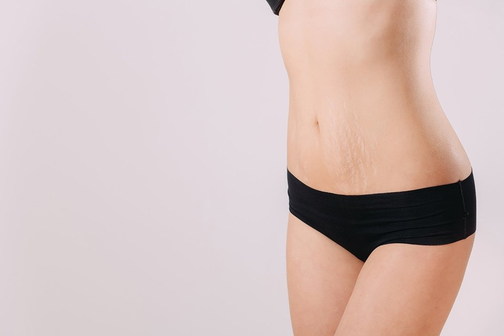 Recipe for Reducing Stretch Marks & Tightening Loose Belly Skin - CLICK TO VIEW