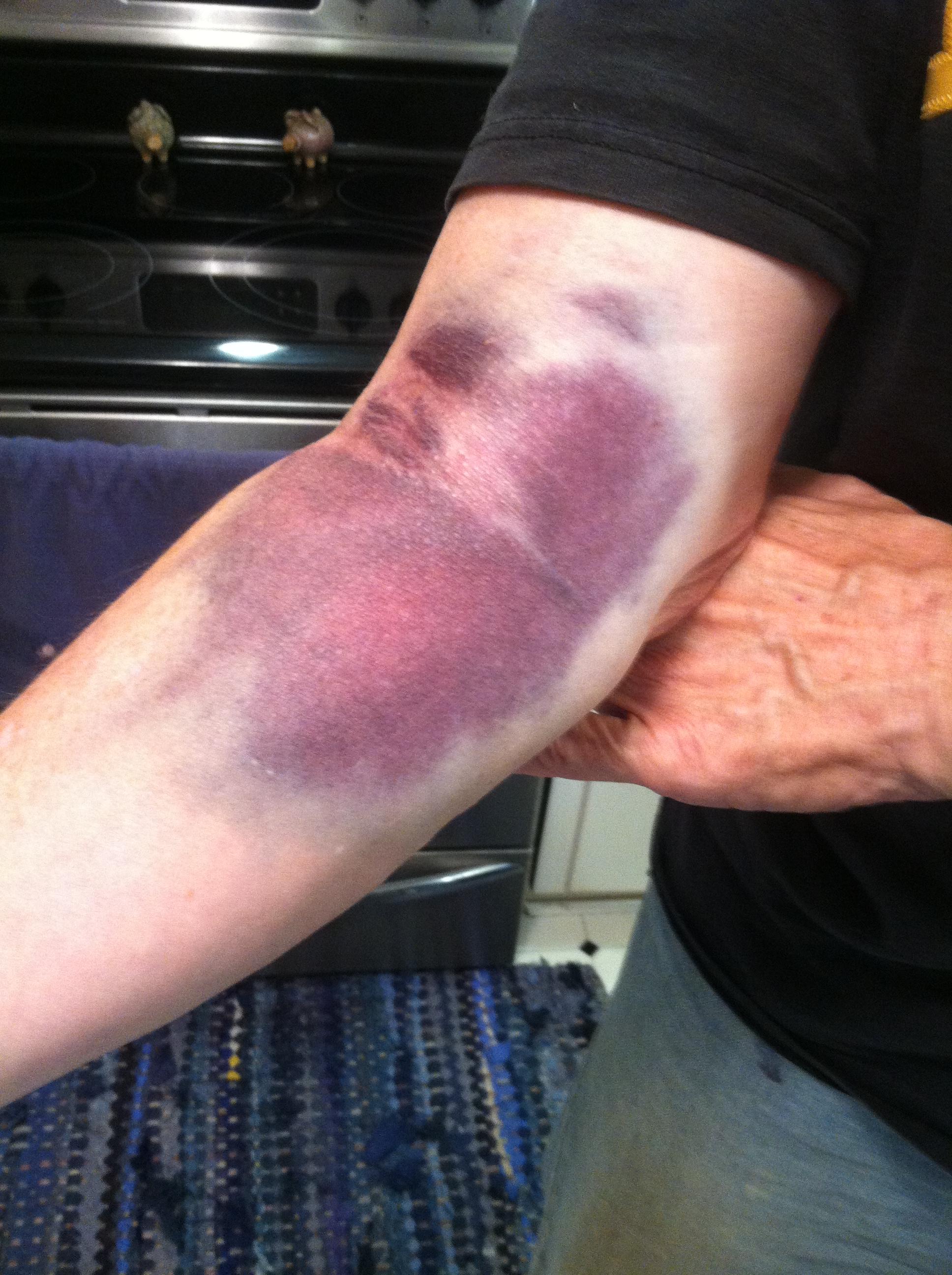 Initial bruise