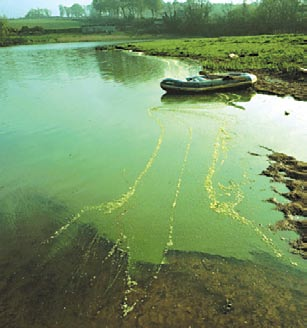 This picture shows a highly toxic strain of the cyanobacterium Microcystis.