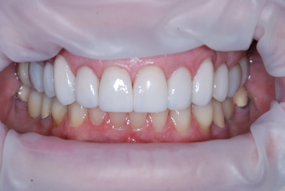 Farrell Helm - Intraoral Smile - Before.jpg