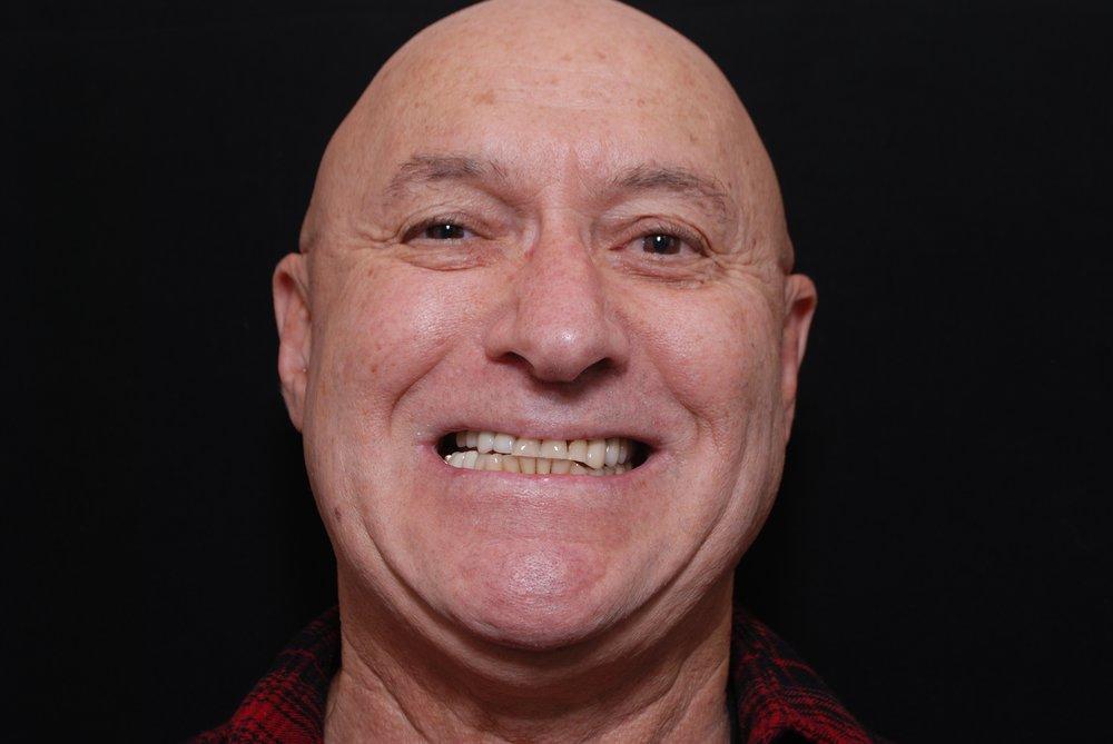 Gregory Chernenko -Smile- Before.jpg