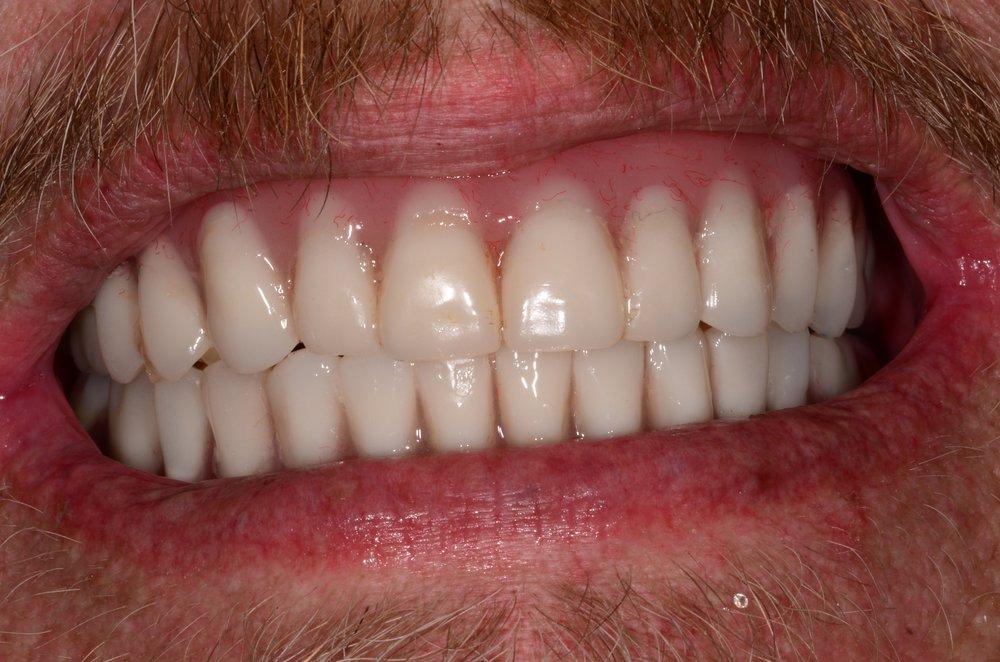 Kevin Garrahy - Intraoral Smile - After.jpg