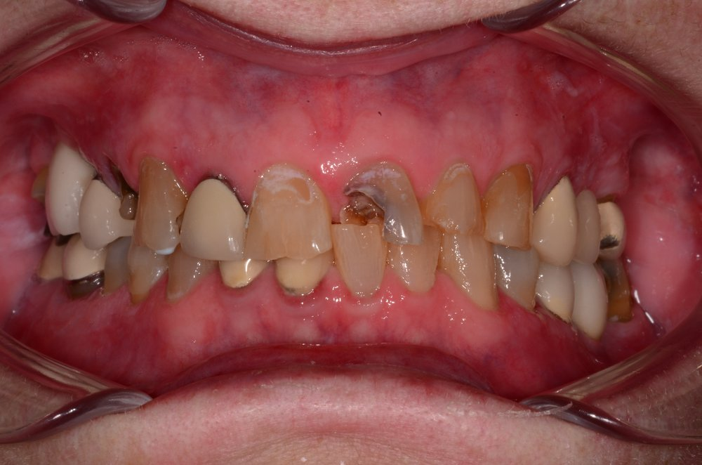 Suzanne Andrew - Intraoral Smile - Before.jpg
