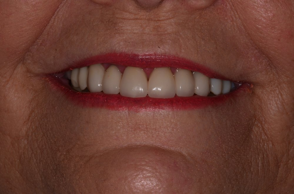 Suzanne Andrew - Intraoral Smile - After.jpg
