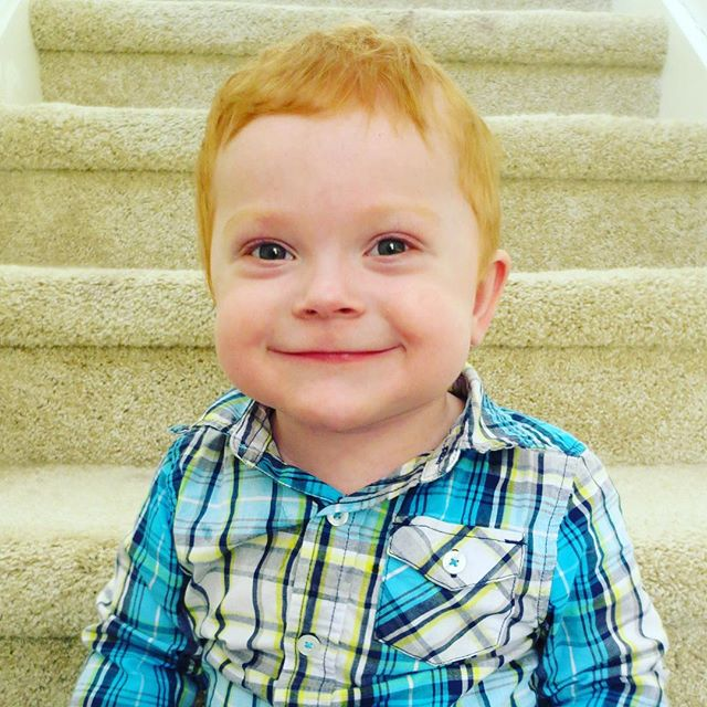 Meet Jonathan. He was born in June 2015 with HLHS and an intact atrial septum. Doctors originally gave Jonathan an approximately a 20 percent chance of survival by multiple top cardiac hospitals around the country. Jonathan underwent multiple heart surgeries in his first few months of life at Riley Hospital for Children with his surgeon, Dr. Mark Turrentine. He spent a total of 6 1/2 months out of his first year inpatient at Riley. Jonathan is home now, 15 months old, post Hemi-Fontan, and doing amazingly well despite some continued feeding challenges.  He is a miracle baby!
