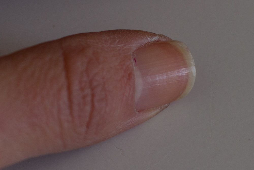 At a lower ISO the nail looks crisp, although darker because the camera is less sensitive. (ISO 200,  f /3.5, 1/50 seconds)