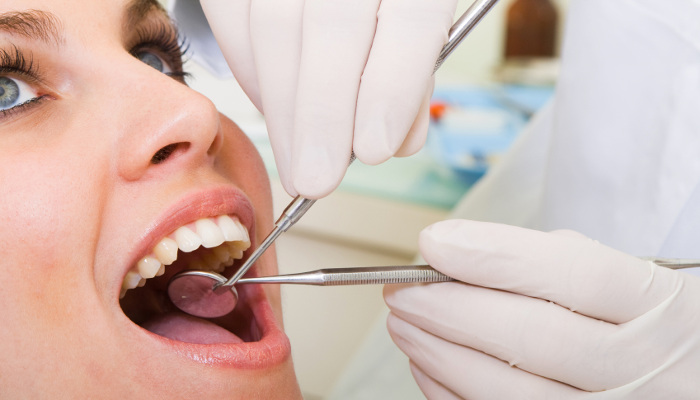 Teeth Extraction Auckland