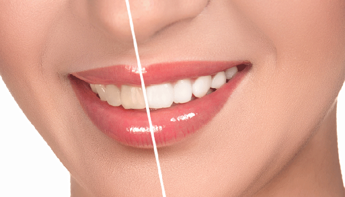 Dental Veneers Auckland