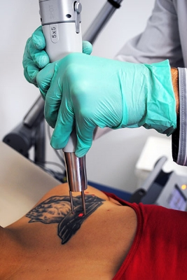Tattoo Treatment1 web.jpg