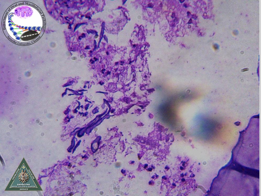 88-17+Mucormycosis.jpg
