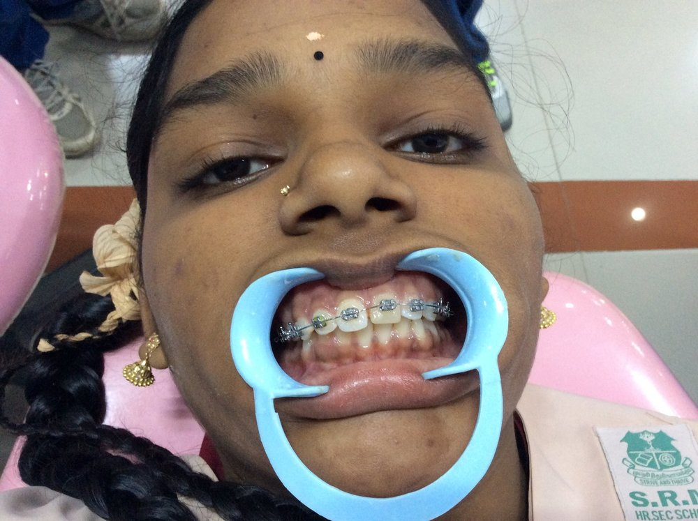 Orthodontics - Our post graduate students are allowed to carry out fixed orthodontics for children below 18 years of age . Being in Pedodontics they are exposed to diagnose, plan treatment and deliver  myofunctional appliances. This will help them in managing orthodontic patients in private practice as well.