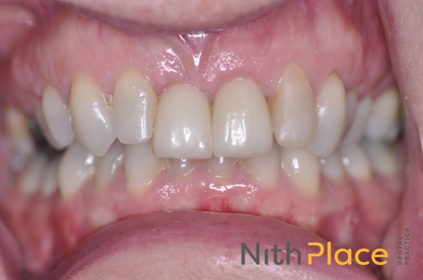 After - Gum re-contouring, tooth whitening, new crowns and smile to be proud of.