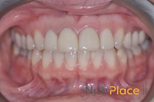 After - Replacement of crowns and bridge with all ceramic crowns, veneers and bridge meant beaming smiles on her big day.