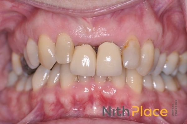 Before - Patient was very self conscious of her teeth due to her older crowns on her front teeth.