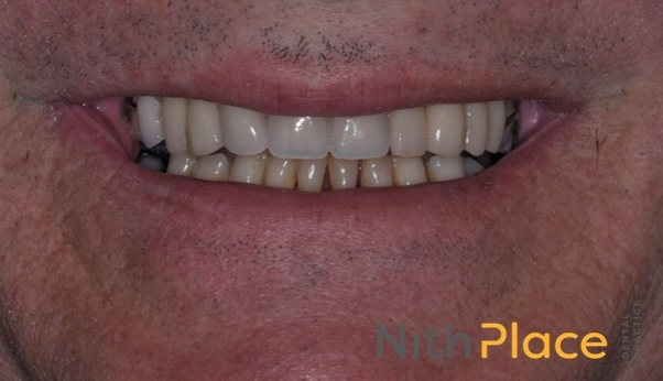 After - Tooth whitening, extraction of roots, a partial denture and some porcelain veneers saved the day.