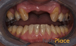 Before - Patient wanted to get rid of a plastic denture that replaced the front teeth.